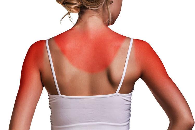 Dossier soleil solutions contre le photo vieillissement de la peau page 2 - Bronzer sans coup de soleil ...